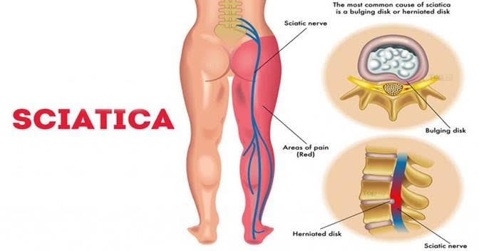 HOW PEMF THERAPY REDUCES SCIATIC NERVE PAIN | Centurion Systems ...